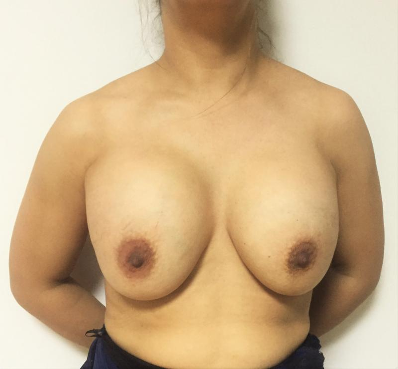 Breast Lift Mastopexy, Breast Augmentation Enlargement, Best Plastic Surgery Lip