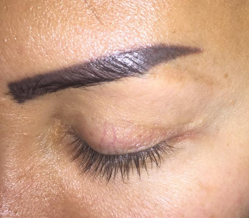 Best Cosmetic Surgery Egypt, Tatoo removal, Eyebrow tatoo, Scar removal, Laser