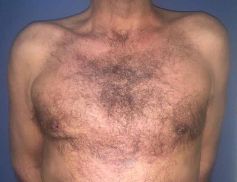 Gynecomastia Egypt, Male Breast Reduction Egypt, Breast Lift, Plastic Surgery
