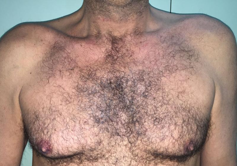 Gynecomastia Egypt, Male Breast Reduction Egypt, Breast Lift, Cosmetic Surgery