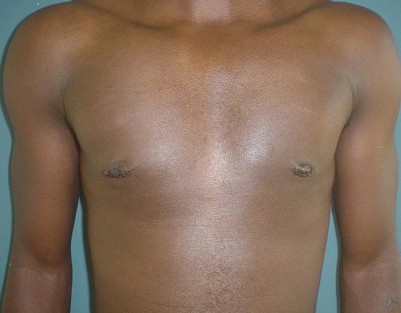 Plastic Surgery Egypt, Gynecomastia, Male Breast Reduction, Man Boobs