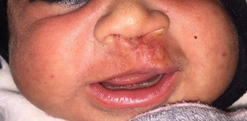 Lip Surgery, Cleft lip surgery, Congenital anomalies, Best Aesthetic Surgeon Egy