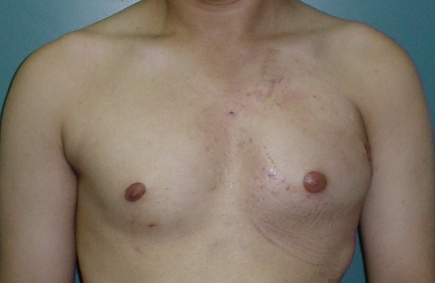 Breast male egypt cosmetic surgery implant syndrome plastic liposuction