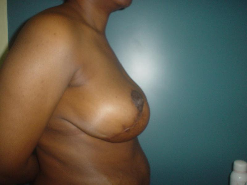 Breast Reduction Egypt, Breast Lift Egypt, Mastopexy Egypt, Cosmetic Surgery Egy