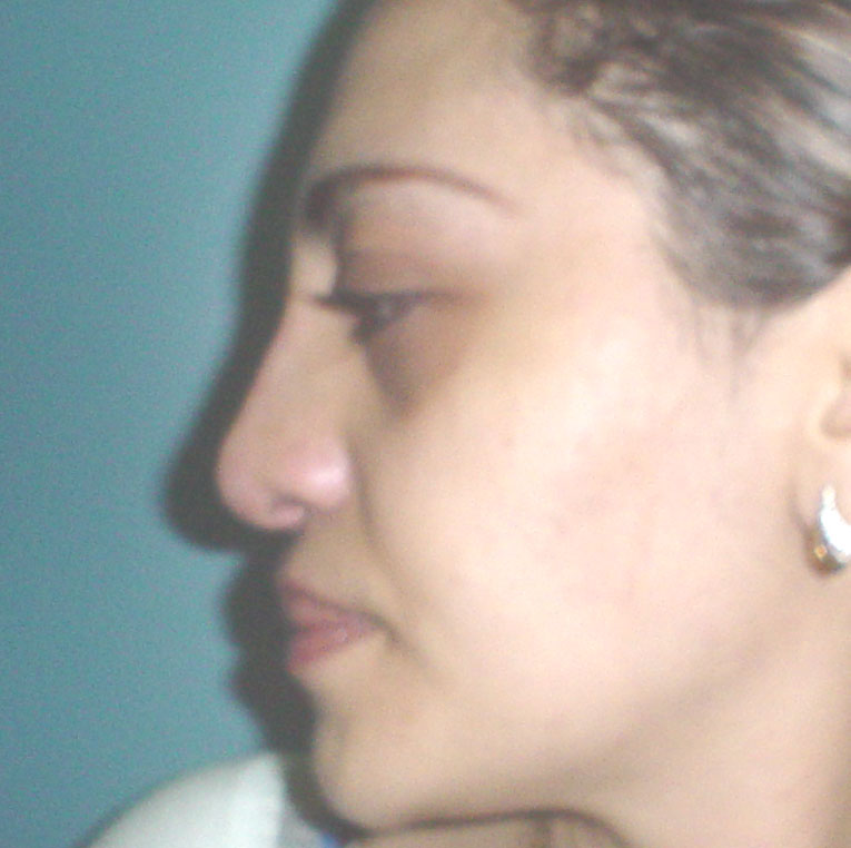 Cosmetic Surgery Egypt Rhinoplasty tip  definition hump dorsum Plastic Cairo