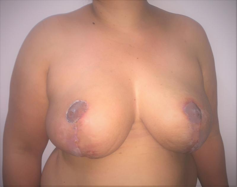 Breast Reduction, Reduction Mammoplasty Mastopexy, Areola Reduction, Plastic