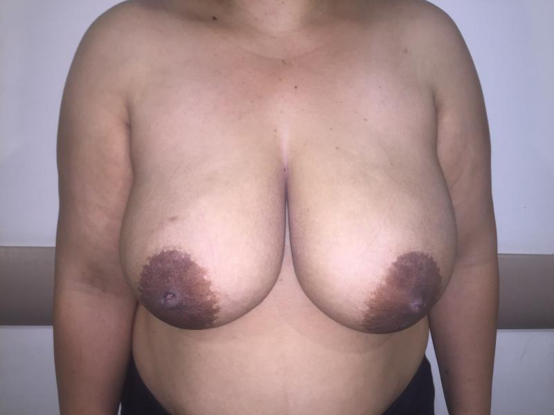 Breast Reduction, Reduction Mammoplasty Mastopexy, Areola Reduction, Cosmetic