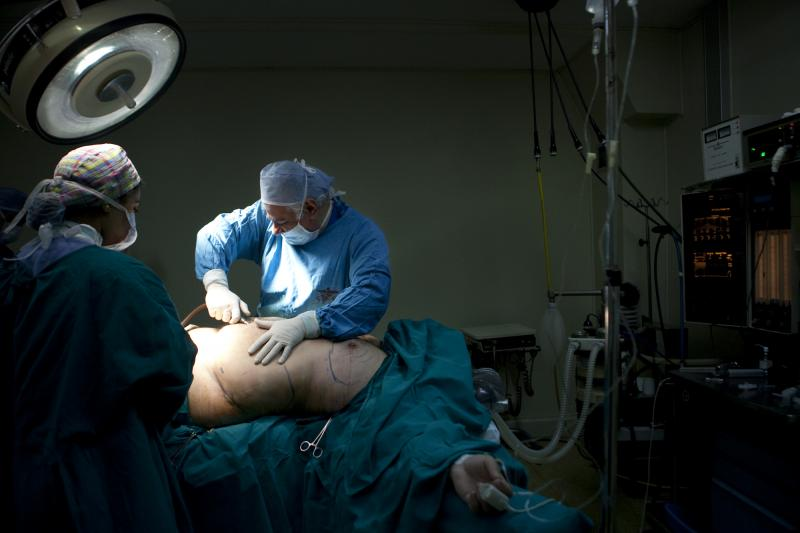Bariatric Su8rgery,Egypt,Morbid Obesity,Gastric Band,Sleeve gastrectomy,Cosmetic