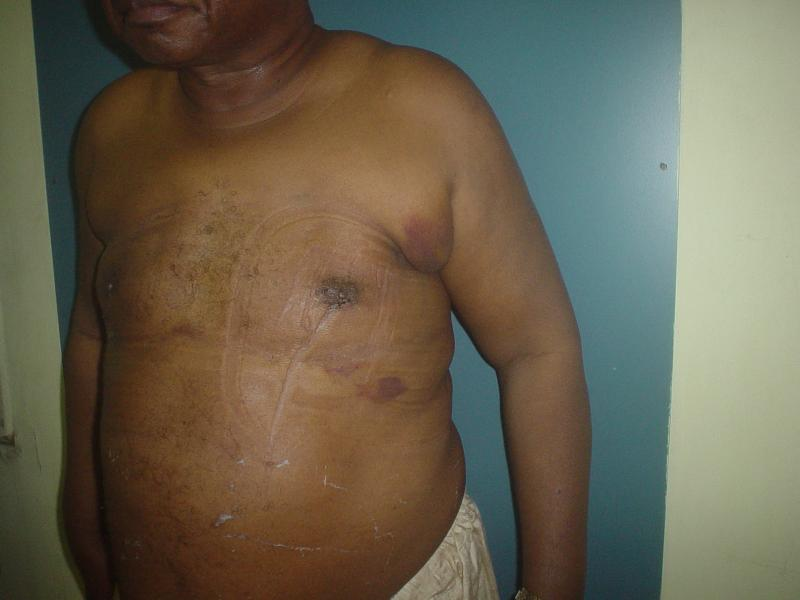Best Plastic Surgeon Egypt, Gynecomastia, Breast Reduction, Male Breast Reductio