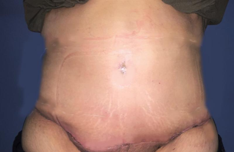 Abdominoplasty, Tummy Tuck, Best Cosmetic Surgery, Vaser Liposuction, Umbilicus
