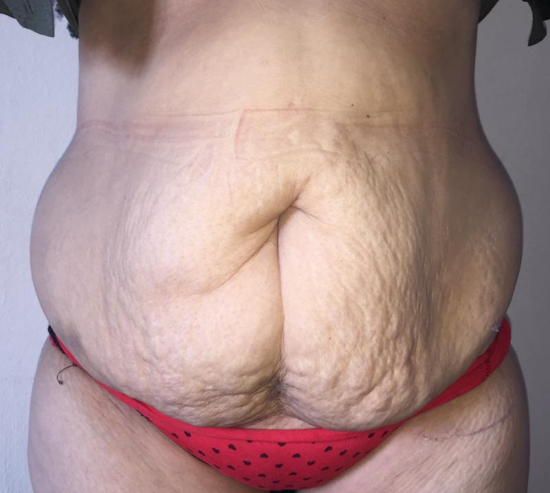 Abdominoplasty, Tummy Tuck, Best Cosmetic Surgery, Laser Liposuction, Umbilicus