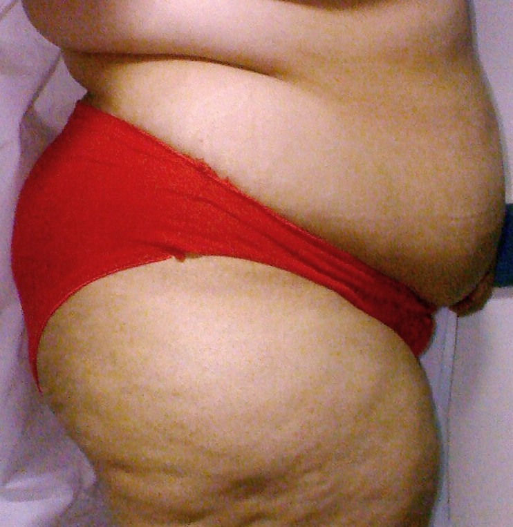 Plastic Cosmetic Surgery,Egypt,Bariatric Surgery,Obesity,Fat,Liposuction,gastric