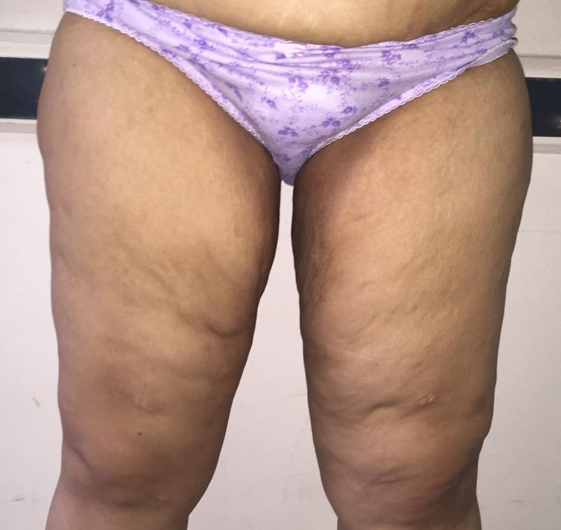 Massive weight loss, sleeve gastrectomy, thigh lift, body lift, Laser Liposuctio