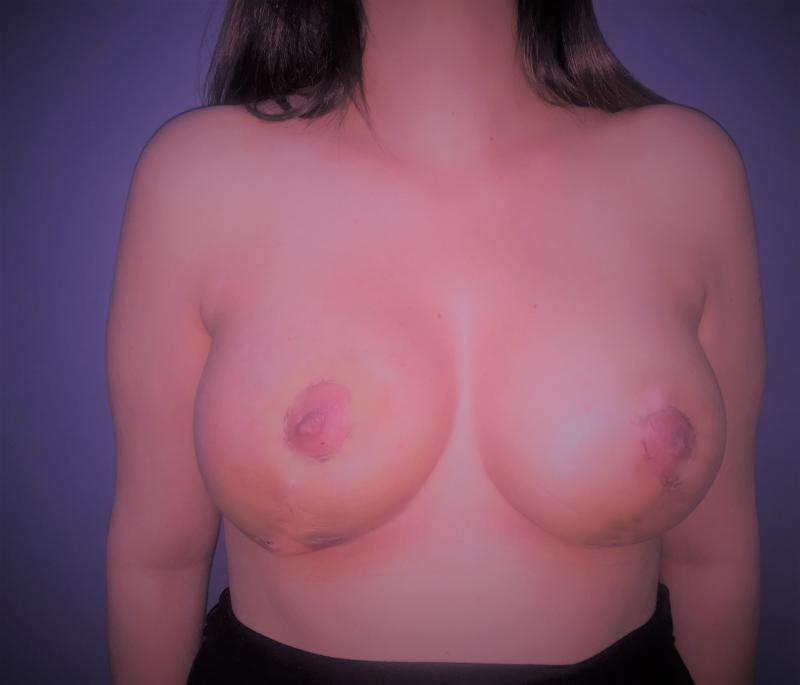 Breast Enlargement and Lift, Augmentation Mastopexy, Best Plastic Surgery Egypt
