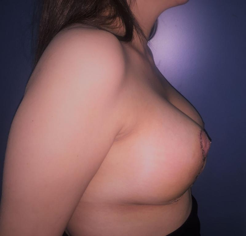 Breast Enlargement and Lift, Augmentation Mastopexy, Silicone Implant of Breasts