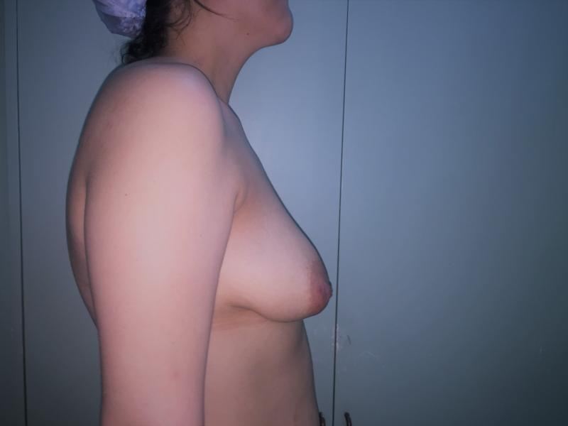 Breast Enlargement and Lift, Augmentation Mastopexy, Fat injection of Breasts