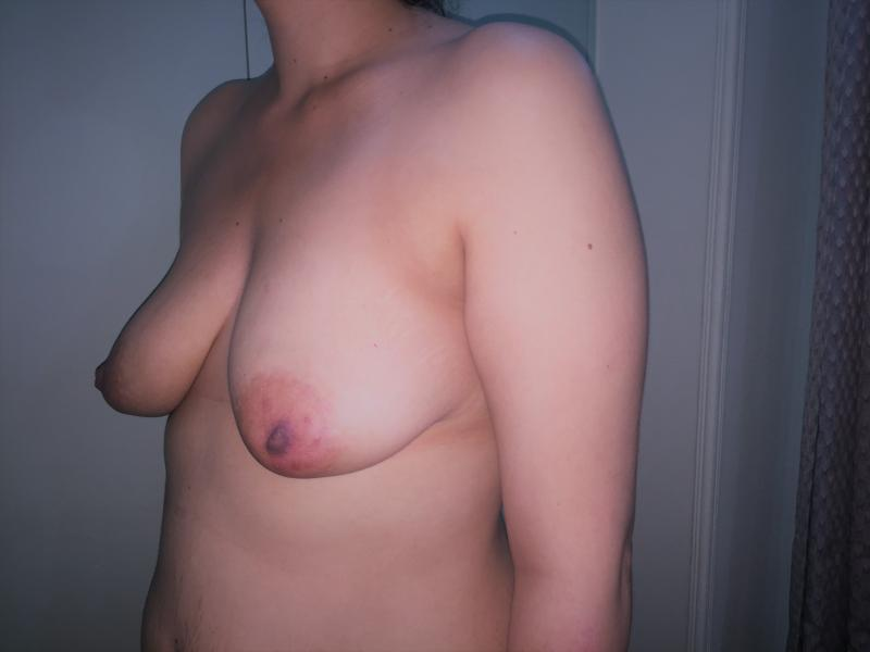Breast Enlargement and Lift, Augmentation Mastopexy, Best Aesthetic Surgery Egyp