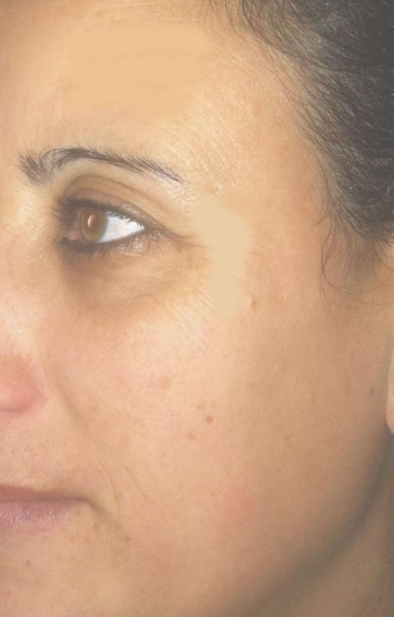 Best Cosmetic Surgery Egypt, Best Aesthetic Surgeon Egypt, Botox injection lines
