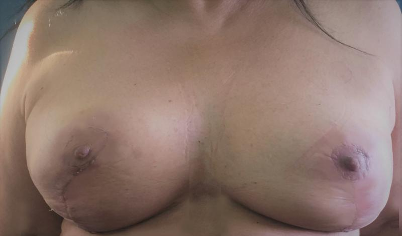 Breast Enlargement Ptosis Lift, Augmentation Mastopexy, Best Cosmetic Surgery