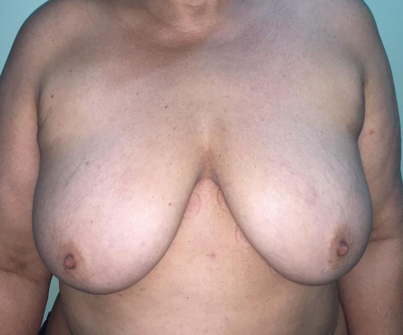 Breast Enlargement Ptosis Lift, Augmentation Mastopexy, Best Plastic Surgery