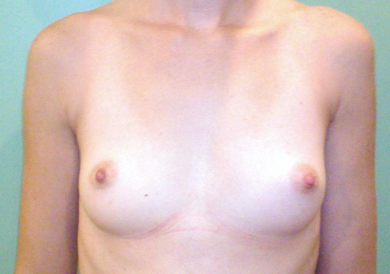 Silicon, breast enlargement, breast augmentation, plastic surgery, egypt, cairo