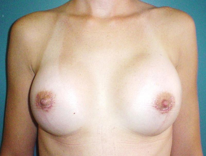 Cosmetic, plastic surgery, egypt, breast augmentation, breast mastopexy, lift