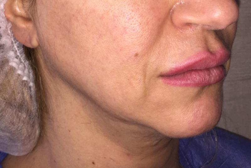 Midface Lift, Face Lift, Jowl Lines, Best Plastic Surgery, Lower Face Lift