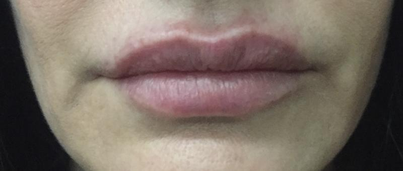 Lip Filler, Lip Enhancement, Dimple Creation, juvederm, Best Plastic Surgery
