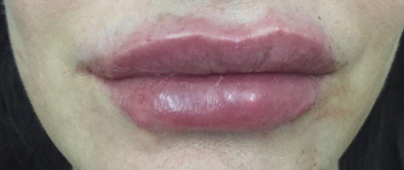 Lip Filler, Lip Enhancement, Dimple Creation, Restylane, Best Plastic Surgery