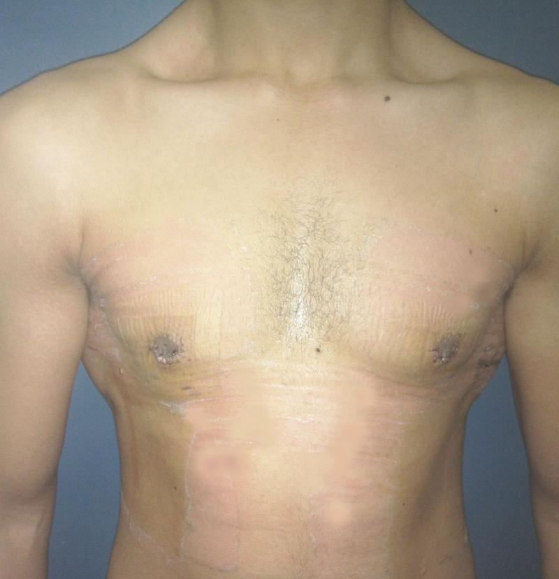 Gynecomastia Male Breast Reduction Egypt, Laser Liposuction Egypt, Cosmetic Surg