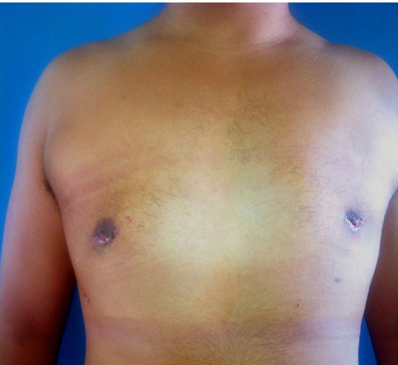 Male Breast Reduction Egypt, Gynecomastia Egypt, Laser Liposuction Egypt, Cosmet