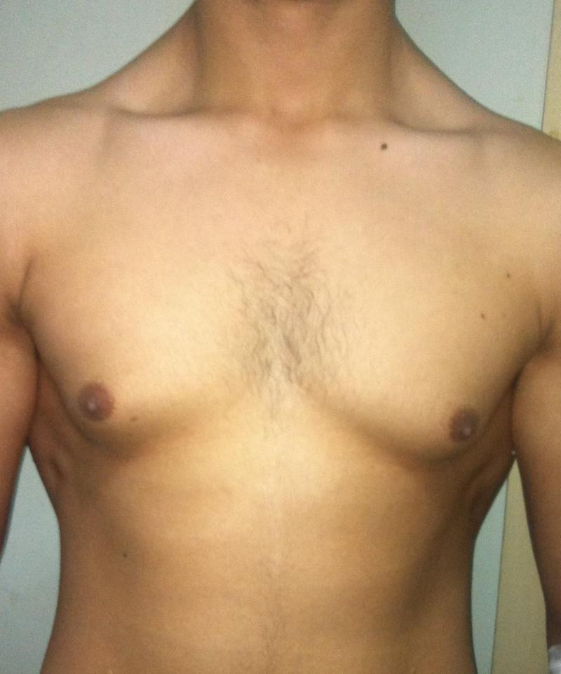 Male Breast Reduction Egypt, Gynecomastia, Liposuction, Best Cosmetic Surgery