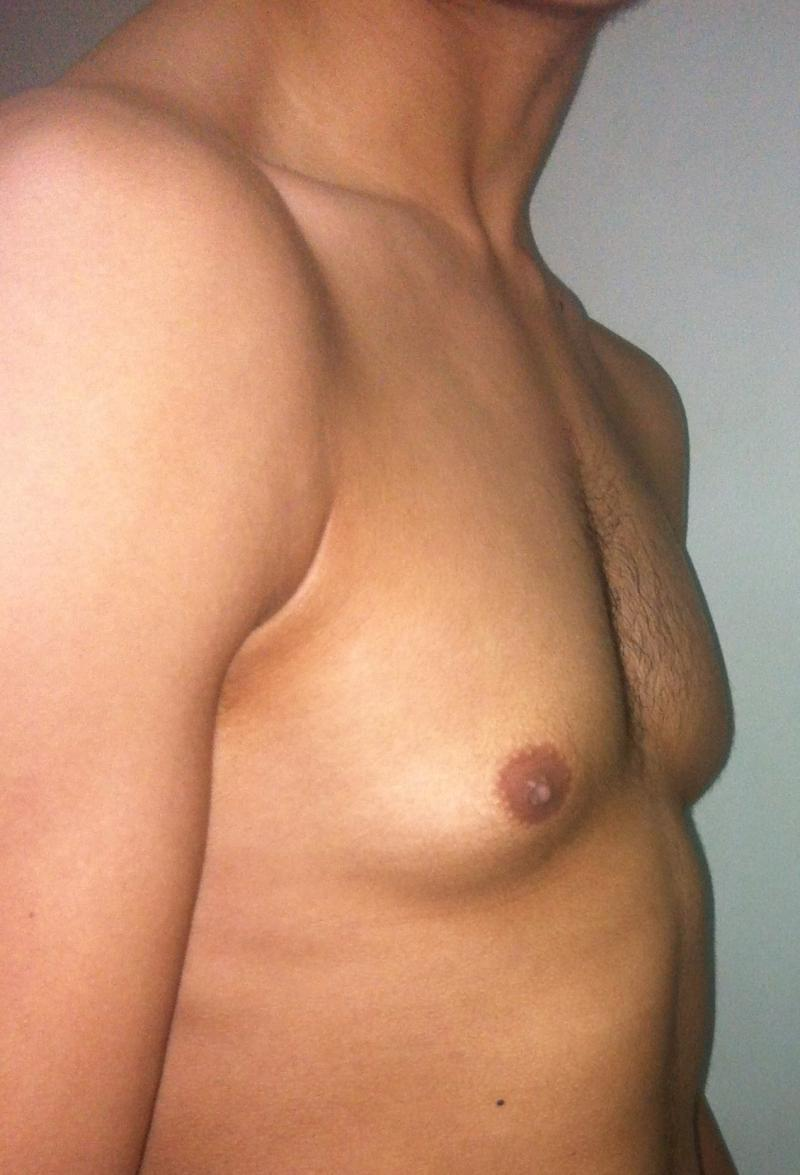 Male Breast Reduction Egypt, Gynecomastia, Liposuction, Best Plastic Surgery