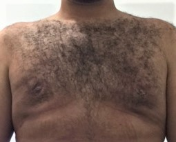 Gynecomastia, Male Breast Reduction تضخم الثدي الرجال التثدي Best Aesthetic Surg