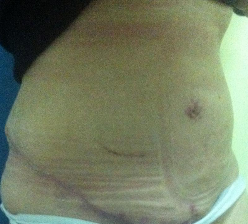 Breast Reduction Egypt, Tummy Tuck Egypt, Abdominoplasty, Plastic Surgery Egy