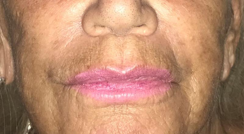Lip augmentation, Lip enlargement, Midface Lift, Fat Injection, Fat grafting