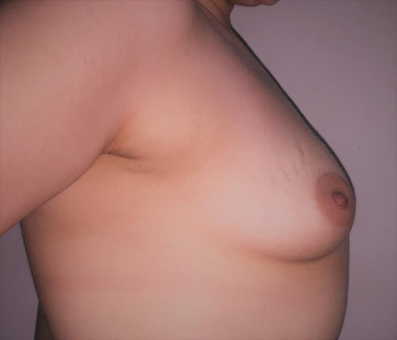 Breast Enlargement Egypt, Small Breast Enhancement, Breast Augmentation, Plastic