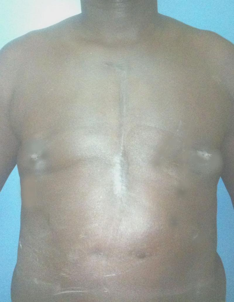 Best Plasttic Surgery Egypt, Male Breast Reduction, Gynecomastia, Vaser Liposuct
