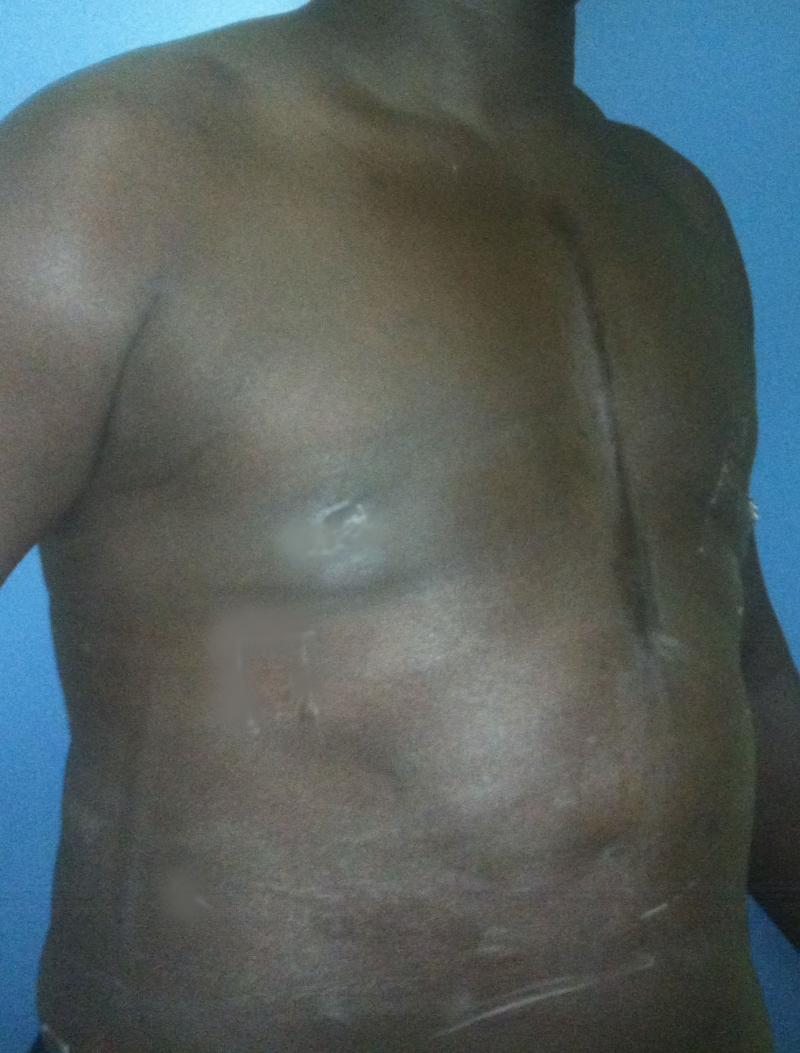 Best Plastic Surgery Egypt, Male Breast Reduction, Gynecomastia, Laser Liposuctn