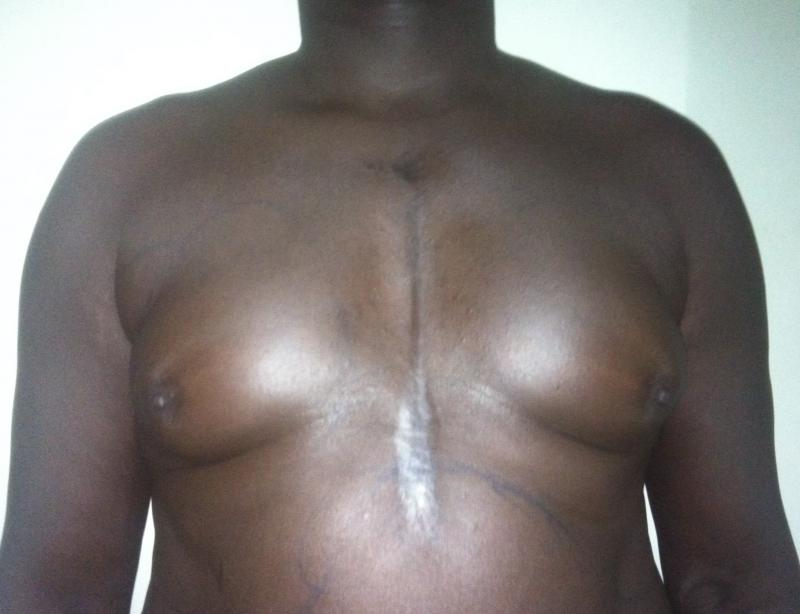 Best Cosmetic Surgery Egypt, Male Breast Reduction, Gynecomastia, Vaser Liposuct