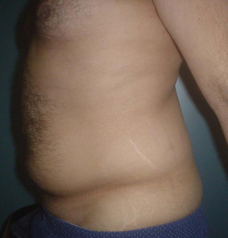 Abdominal Liposuction, Vaser Liposuction, Laser Liposuction, Plastic Surgery egp