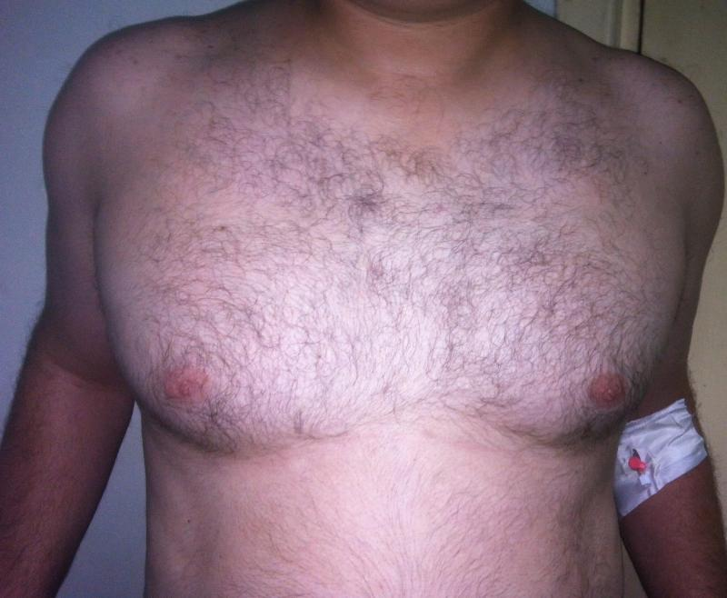 Male Breast Reduction, Reduction Mammoplasty, Gynecomastia, Best Cosmetic surgeo