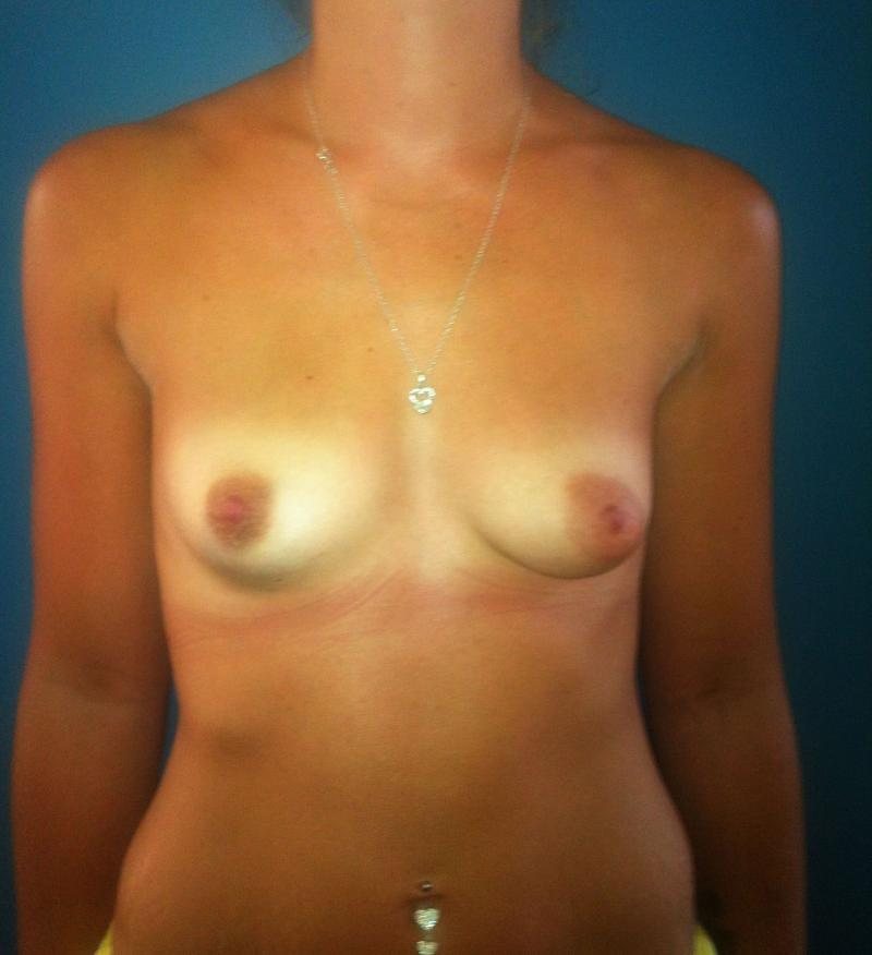 Breast Augmentation, Breast Enlargement, Breast Enhancement, Aesthetic Surgery
