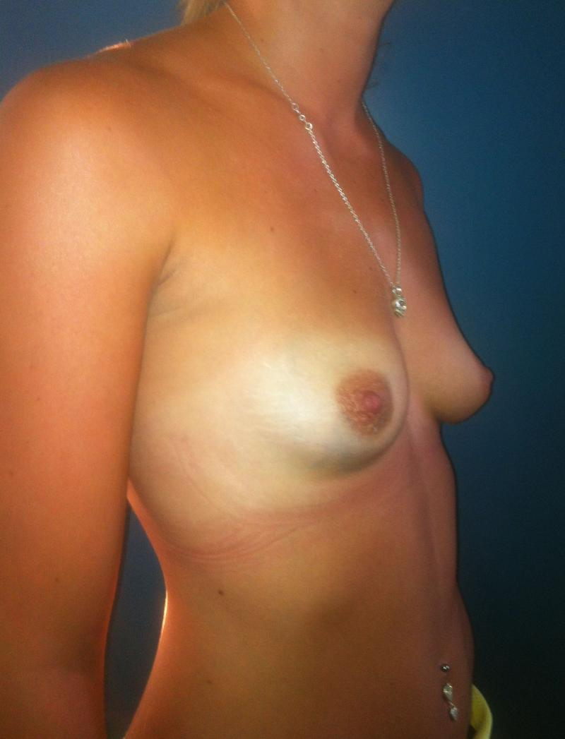 Breast Augmentation, Breast Enlargement, Breast Enhancement, Cosmetic Surgery