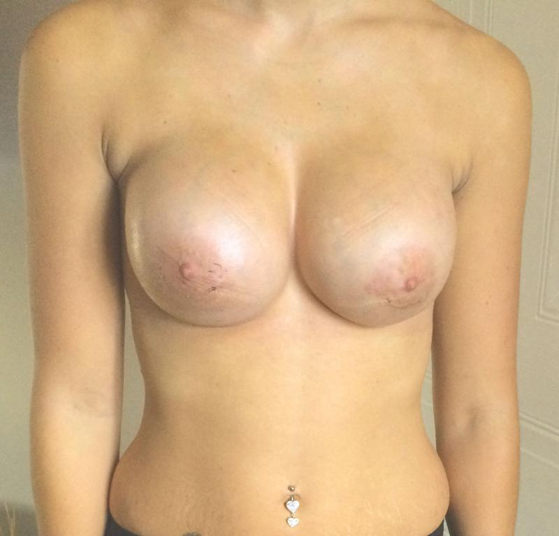 Breast Augmentation, Breast Enlargement, Breast Lift, Aesthetic Surgery Egypt