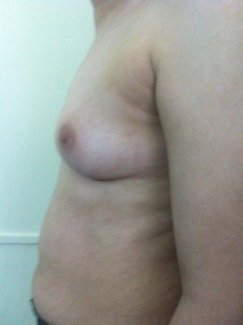 Breast Enhancement Egypt, Breast Enlargement Egypt, Breast Augmentation Egypt