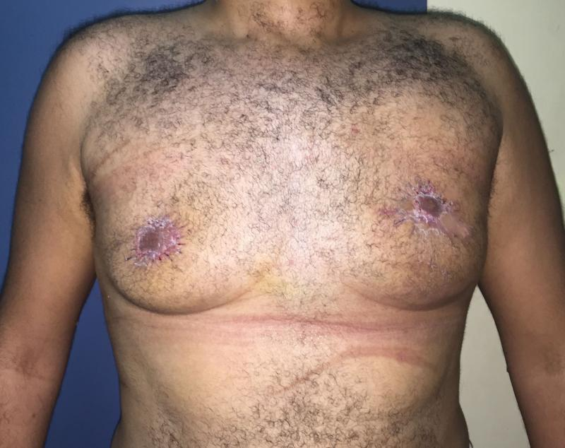 Gynecomastia Egypt, Male Breast Reduction, Best Cosmetic Plastic Surgery Egypt