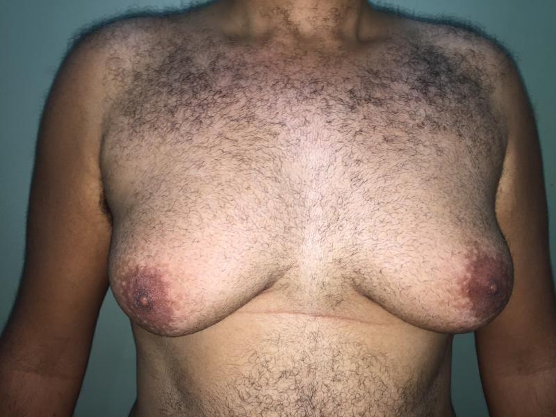 Gynecomastia Egypt, Male Breast Reduction, Best Cosmetic Aesthetic Surgery Egypt