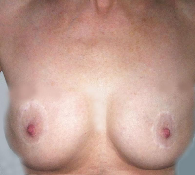 Breast Augmentation Egypt, Fat Grafting Egypt, Fat Transfer, Plastic surgery