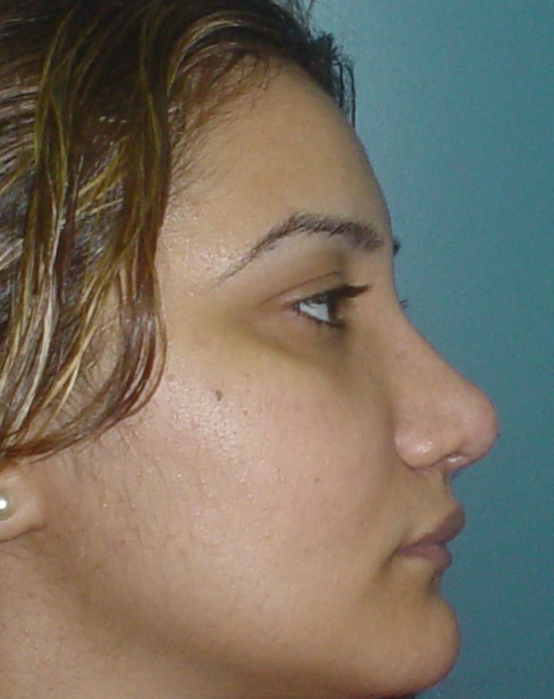 Nose job Egypt Plastic Surgery deformity nose cartilage dorsum hump tip boxy